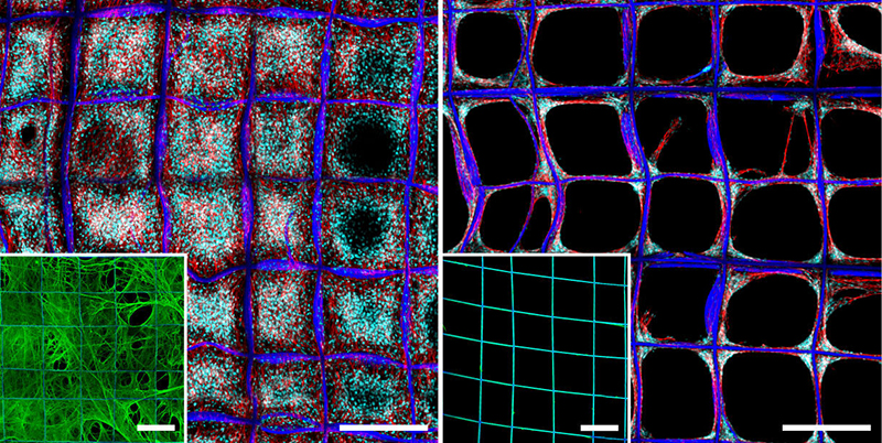 cancer cells on 3-D scaffold